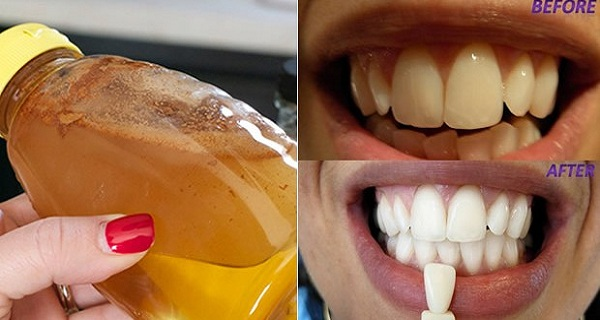 15+ Home Remedies to Make Your Teeth Whiter