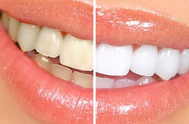 How to Make Your Teeth Whiter (without destroying your enamel)